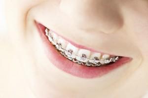 braces-cost
