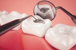 cavity filling cost